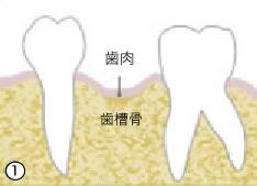 治療・歯のクリーニング