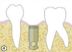 仮歯の製作・装着(⑥)